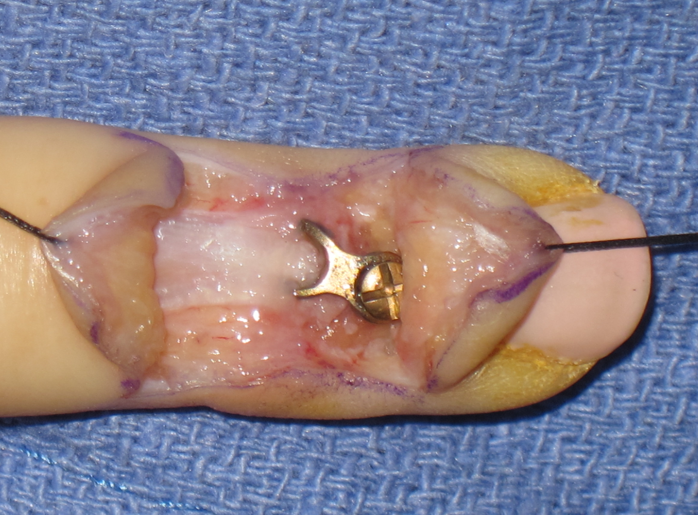 AAHS - New Method of Mallet Fracture Fixation using a Hook Plate ...